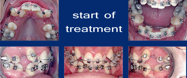 damon-system-tooth-movement-2